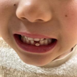 次男くんの歯が抜けた!