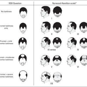 男性ホルモン、性的活動と前立腺がん その3男性型脱毛症