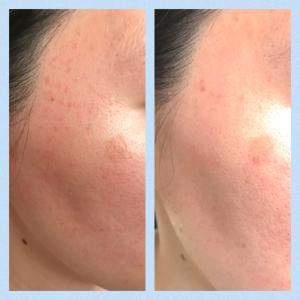 肌荒れ・化粧かぶれから2年!スキンケアとしてミラブルを使っています!