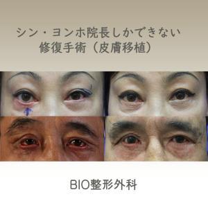 整形の副作用である色んな再手術の悩みはBIO整形外科で終わり!