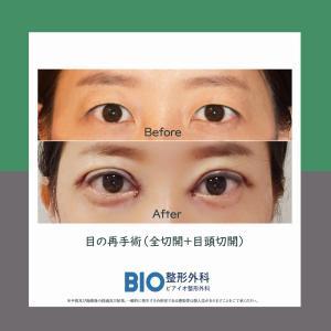 目の再手術