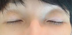 眼瞼下垂術後六ヵ月目