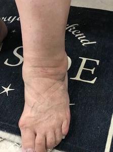 パーキンソン症状 歩行、すくみ足の改善35 経絡整体