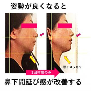 体験コース1回で横顔美人に★「お顔の間延び感」は姿勢からも大事なのです★