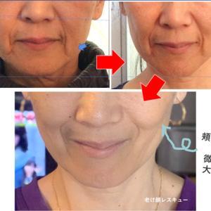 鼻下の間延び感改善♪ーーお顔の下半分が印象で「おばあちゃん感」?
