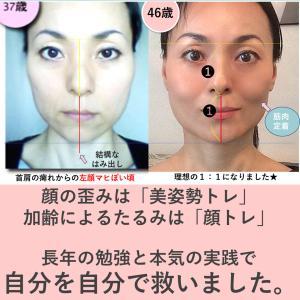 「お顔のバランス」が崩れると「老け顔」になるの症例