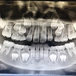 9歳の歯並びの相談に行ってみた