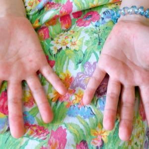 手足口病院の症状