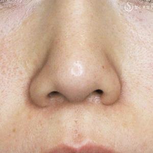 左右差のある鼻に「二つの+α法」
