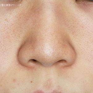 鼻尖用PCLドーム・札幌院でテスト