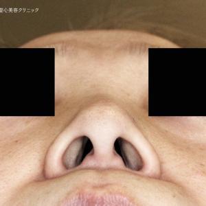 鼻のコンプレックス解消「小鼻+α」