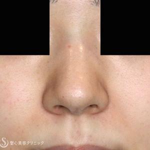 耳介軟骨いらず「鼻尖縮小+α」(1Y)
