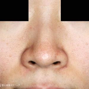 鼻の存在感を消す「+α」(1Y8M)