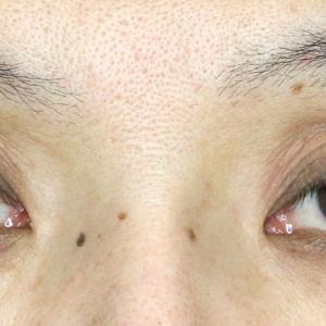 くぼみ目の改善効果まで(下垂+α)