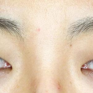 美容外科の「切らない眼瞼下垂+α」