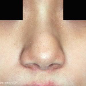 術者も驚く仕上がり「小鼻縮小+α」