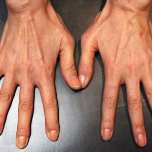 「手の甲」究極のアンチエイジング