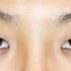 かぶれ強い一重瞼を「+α」で激変