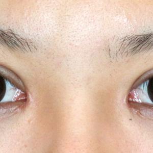 続・かぶれ強い一重瞼を+αで激変