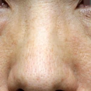 「目の下のクマ」注入治療(6年後)