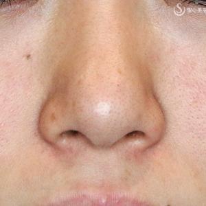 2つの+αでスマートな鼻に(3Y)