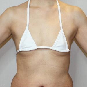 最新の脂肪幹細胞豊胸(48歳女性)