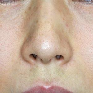 1例目の小鼻縮小術+α法(7年後)