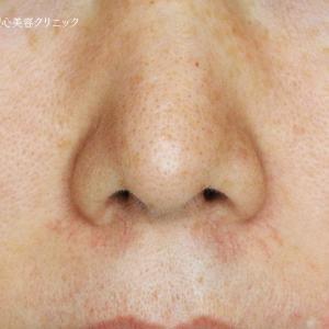 「鼻下の赤み」585モニター