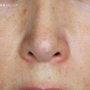 鼻の下の赤み585モニター(2回後)