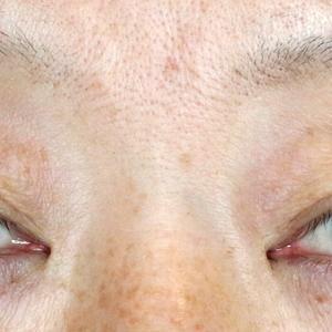 切らない眼瞼下垂+α(8M)