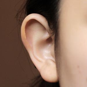 この時期に多い「立ち耳」の治療