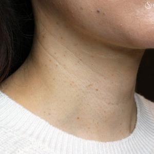 「首の横ジワ」の注入治療(5年後)