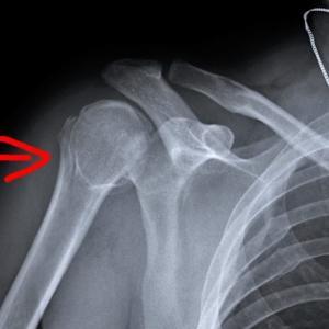 上腕骨折のリハビリは今日でおしまい、