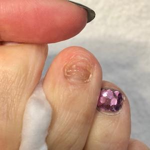 足の爪が・・・・・取れた☺︎