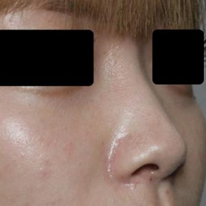 鼻のクレヴィエル(ヒアルロン酸)注入