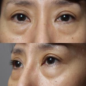 目の下の若返り(経結膜側脱脂+プレミアムPRP)後1か月