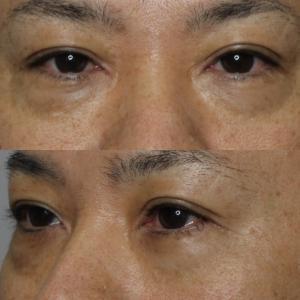 目の下の脱脂+プレミアムPRPで皮膚切除せずに若々しい目元に!!