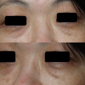 目の下の脱脂+プレミアムPRPで目元をすっきりと!!