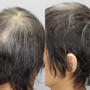 毛髪複合治療(4か月後)