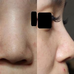 鼻尖縮小+鼻筋のヒアルロン酸後のG-mesh(糸で鼻筋を通す)