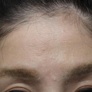 額と目の上をプレミアムPRPで自然にふっくらと!!