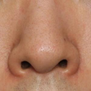 鼻孔縁下降術後1か月
