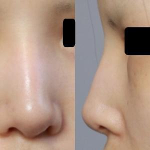 鼻尖縮小+耳介軟骨移植後1週間