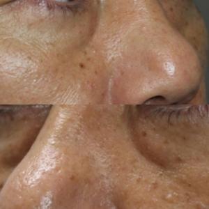 目の下のプレミアムPRP(1か月後)