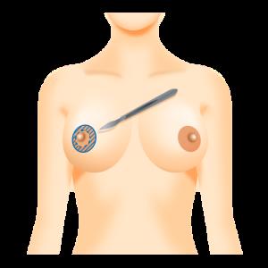 他院の乳輪縮小後の修正(当院乳輪縮小後2か月)