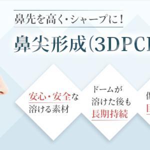 小鼻縮小+鼻尖縮小+3DPCLドーム