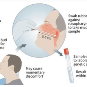 アメリカは新型コロナの検査は発症から3~4日の間に受けることを推奨。その理由は?