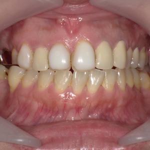 前歯のセラミック治療!