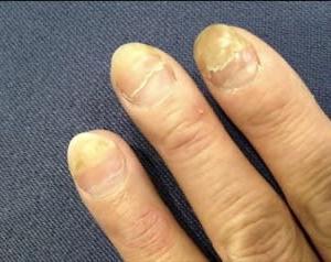 治療中の爪、まつ毛、眉毛のお手入れ知っておくと安心です