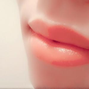 憧れの女優のように?!唇フィラー